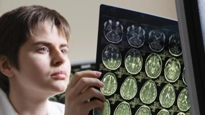 Найдена лучшая диета для мозга