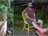 Егерь, придавленный деревом, спас себя при помощи бензопилы